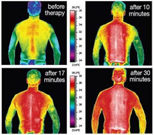 Tia hồng ngoại và phương pháp điều trị bằng tia hồng ngoại tại An Care Health